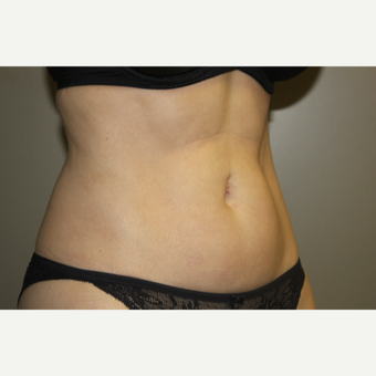 45-54 year old woman treated with SculpSure after 3706740