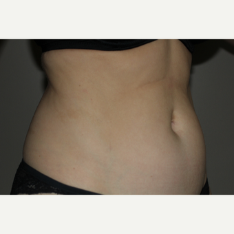 45-54 year old woman treated with SculpSure before 3706740