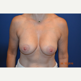 45-54 year old woman treated with Breast Augmentation after 3423462