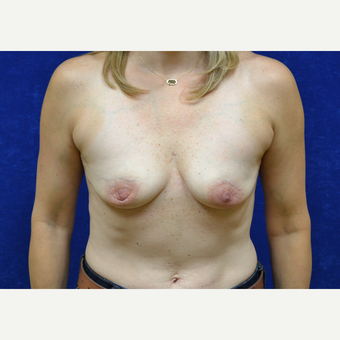45-54 year old woman treated with Breast Augmentation before 3423462