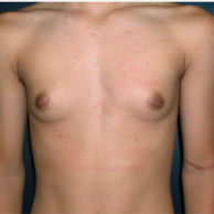 15 year old man treated with Male Breast Reduction before 3720897