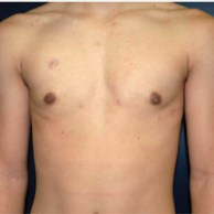 15 year old man treated with Male Breast Reduction after 3720897