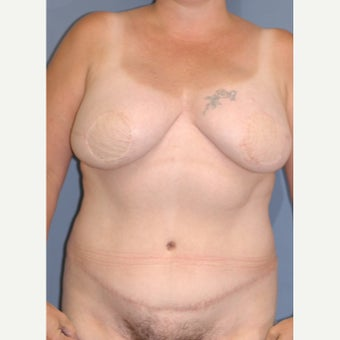 35-44 year old woman treated with Breast Reconstruction after 1835952