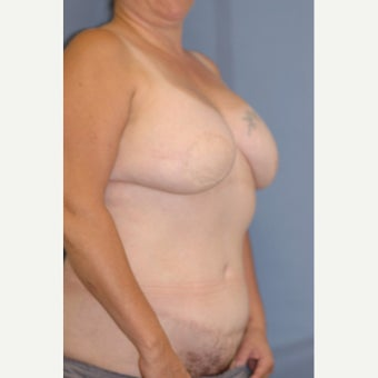 35-44 year old woman treated with Breast Reconstruction 1835952