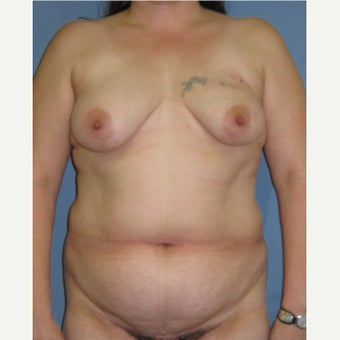 35-44 year old woman treated with Breast Reconstruction before 1835952
