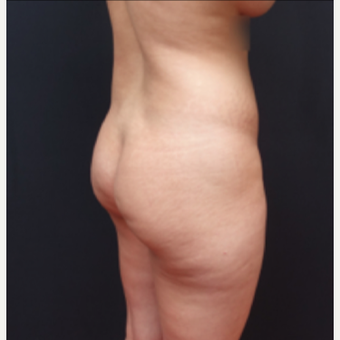 25-34 year old woman treated with Fat Transfer before 3267084