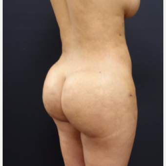 25-34 year old woman treated with Fat Transfer after 3267084