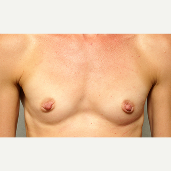 18-24 year old woman treated with Breast Augmentation before 3061583