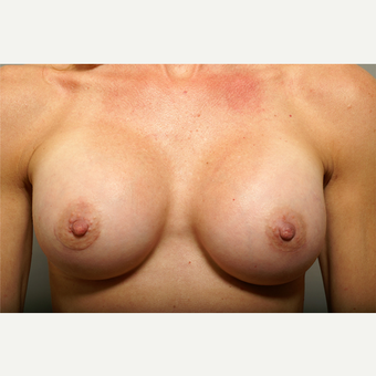 18-24 year old woman treated with Breast Augmentation after 3061583