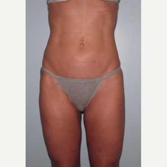 45-54 year old woman treated with Liposuction Revision after 3644240