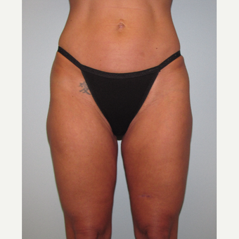 45-54 year old woman treated with Liposuction Revision before 3644240
