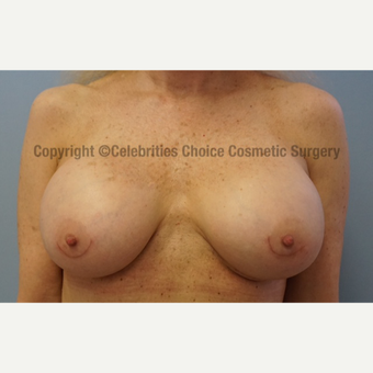55-64 year old woman treated with Breast Implant Revision after 3022008