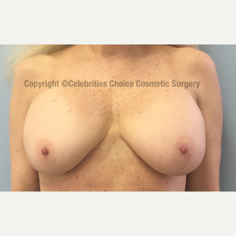 55-64 year old woman treated with Breast Implant Revision before 3022008