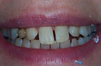 35-44 year old woman treated withDental Veneers before 3031459