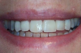 35-44 year old woman treated withDental Veneers after 3031459