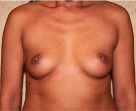 Silicone Implants - Breast Augmentation before 3318942
