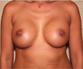 Silicone Implants - Breast Augmentation after 3318942