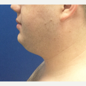 25-34 year old man treated with Liposuction before 3496348