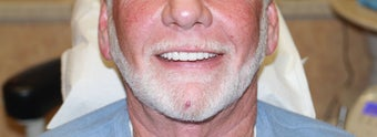 All-on-4 Dental Implants Las Vegas