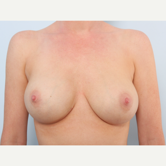 Breast Implant Exchange after 2966410