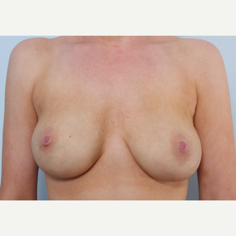 Breast Implant Exchange before 2966410