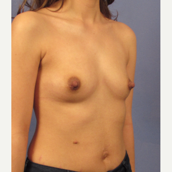25-34 year old woman treated with Breast Augmentation before 3131807