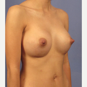 25-34 year old woman treated with Breast Augmentation after 3131807