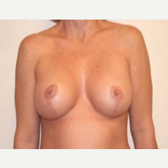 35-44 year old woman treated with Breast Lift after 3339167