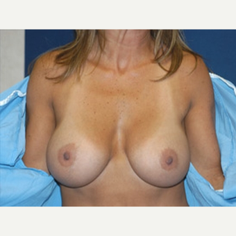 35-44 year old woman treated with Breast Augmentation after 3815599