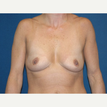 35-44 year old woman treated with Breast Augmentation before 3815599