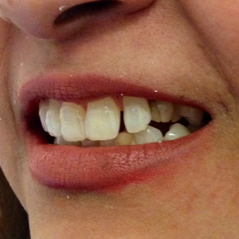 35-44 year old woman treated with Porcelain Veneers before 2977136