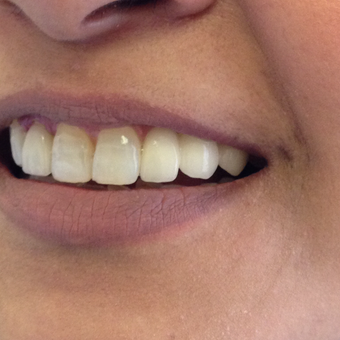35-44 year old woman treated with Porcelain Veneers after 2977136