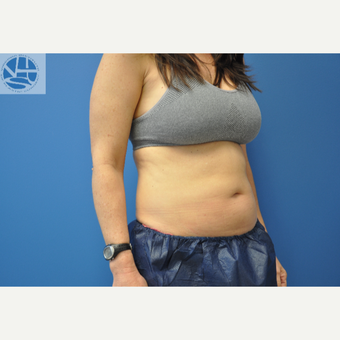 35-44 year old woman treated with CoolSculpting before 3649984