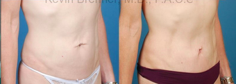 Mini Tummy Tuck with Diastasis Repair after 945619