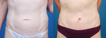 Mini Tummy Tuck with Diastasis Repair before 945619