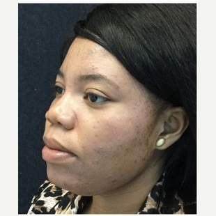 25-34 year old woman treated with Injectable Fillers after 3219624