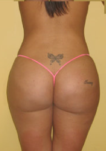 Buttock Augmentation after 459487