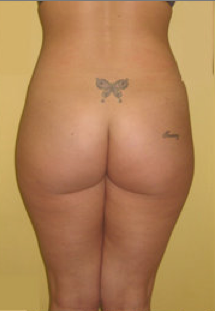 Buttock Augmentation before 459487