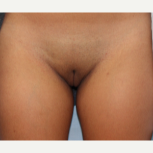 18-24 year old woman treated with Labiaplasty after 3079808