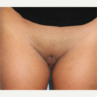 18-24 year old woman treated with Labiaplasty before 3079808