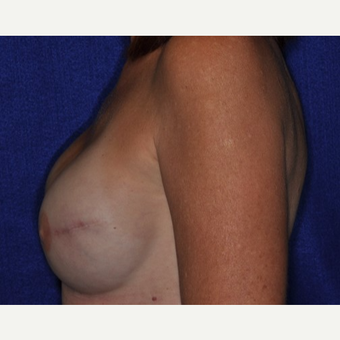 35-44 year old woman treated with Breast Reconstruction after 3849253