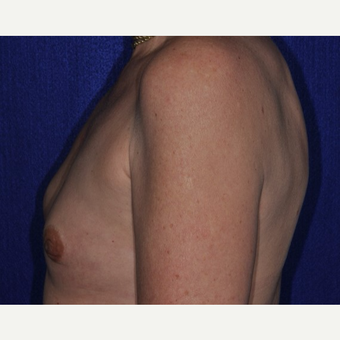35-44 year old woman treated with Breast Reconstruction before 3849253