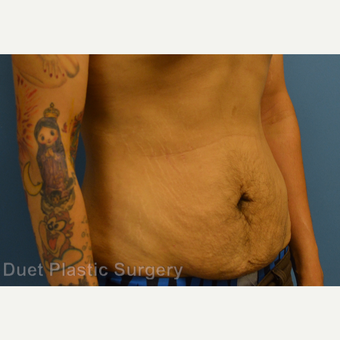 25-34 year old man treated with Male Tummy Tuck before 3368670