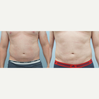 Liposuction 41 yr old Male before 3294507