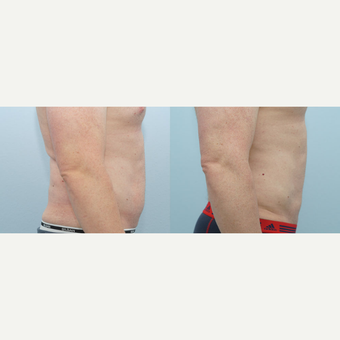 Liposuction 41 yr old Male after 3294507