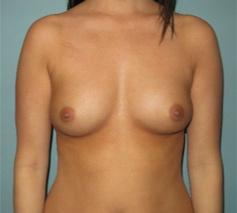 25-34 year old woman treated with Breast Augmentation before 3358365
