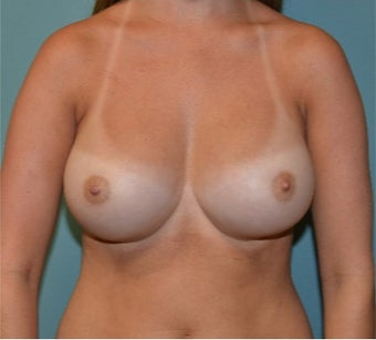 25-34 year old woman treated with Breast Augmentation after 3358365