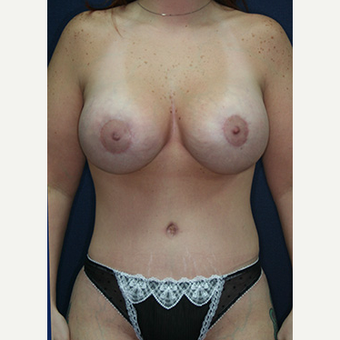25-34 year old woman treated with Mommy Makeover after 3519801