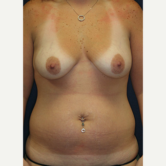 25-34 year old woman treated with Mommy Makeover before 3519801