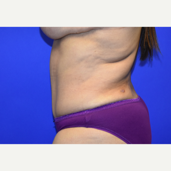 55-64 year old woman treated with Tummy Tuck after 3259829
